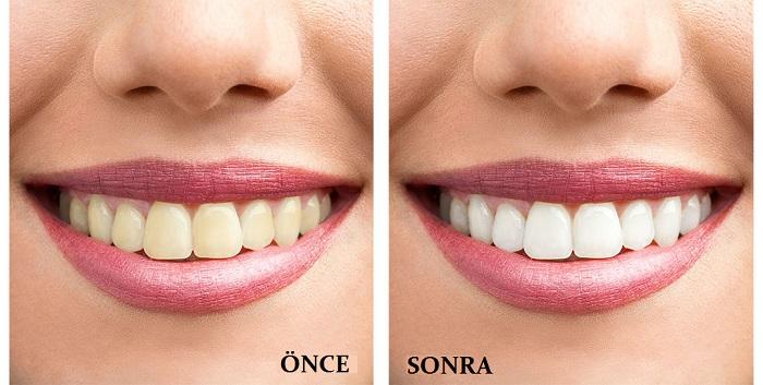 evde doğal diş beyazlatma yöntemleri