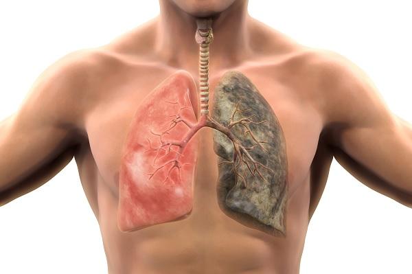sigara içenin akciğerleri